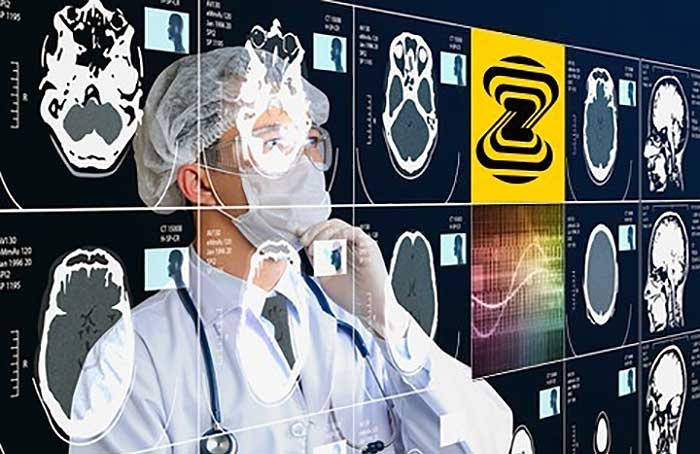 AI Startups See Opportunities to Disrupt Medical Imaging